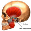 tmj lawyer edmonton - jaw/skull