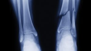 Fractured of Broken Fibula or Tibia Claim
