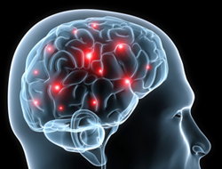 edmonton brain injury lawsuit settlements