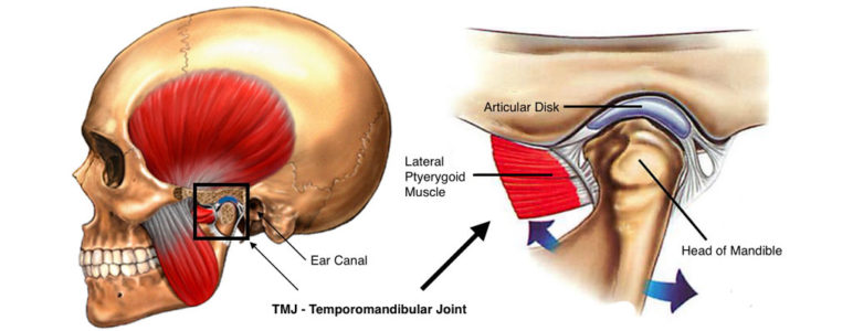 Temporomandibular Joint Dysfunction - TMJ Injury